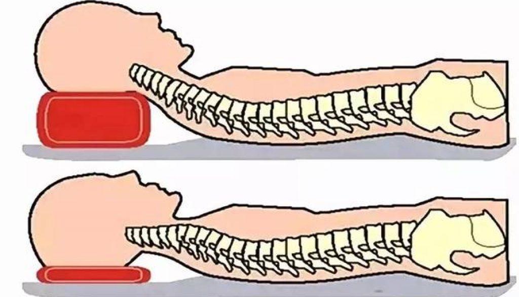枕頭太高或太低都很傷頸椎,嚴重時可能導致癱瘓,頭要怎麼「枕」才能無憂?